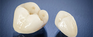 all-ceramic crowns