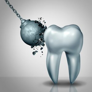 wrecking ball crumbling against tooth enamel