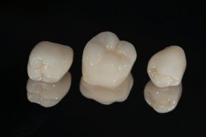 Three lifelike dental crowns on black background